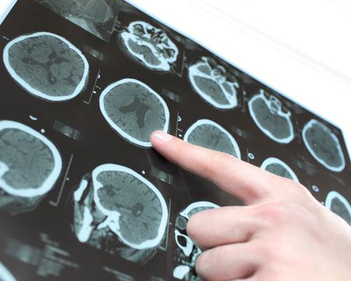 Neurologie Gratkorn Graz Umgebung